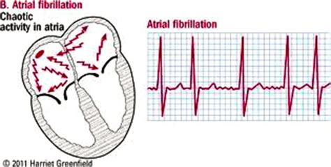 atrial fibrillation diagram do you take blood thinners for atrial fibrillation