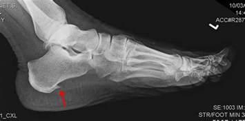 heel spurs or plantar fasciitis dr nick s running
