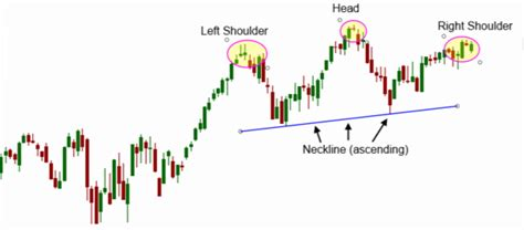 trading pattern head and shoulders head and shoulders pattern 7 things you need to know
