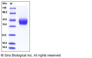 n protein factor factor d protein mouse recombinant his tag