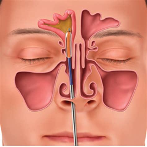prolattina alta e mal di testa il mal di testa non passa 232 spesso colpa della sinusite
