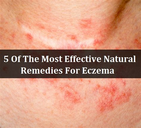hair eczema remedies