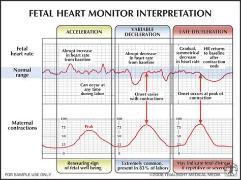 pattern heart rate 캐비닛 fetal heart rate pattern monitoring ii