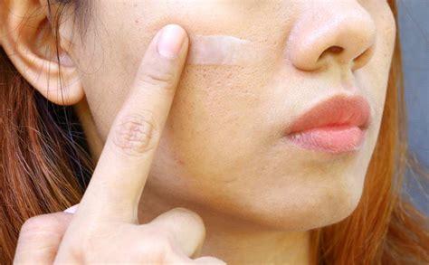 mengecilkan pori pori wajah  ampuh dokter sehat