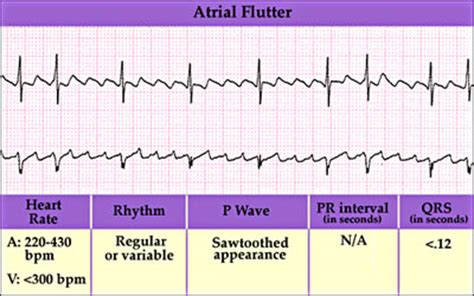 Mat Result Interpretation by Anaesthesia Uk Supraventricular Arrhythmias