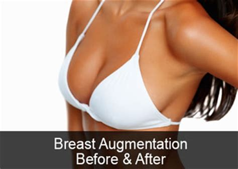 With The Breast Implants by Opinions On Breast Implant