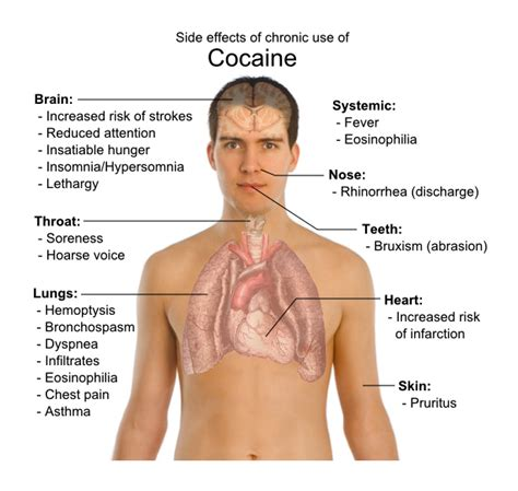 How Do You Detox From Cocaine by Term Effects Of Cocaine Effects On Mind And