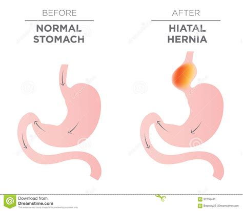 hernia cartoons illustrations vector stock images  pictures
