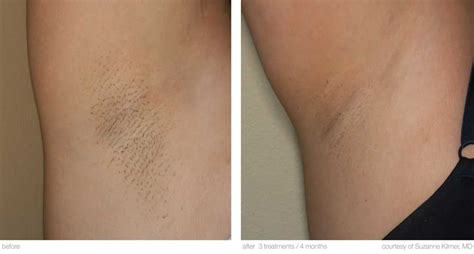 laser hair removal pictures laser waxing gordmans coupon code
