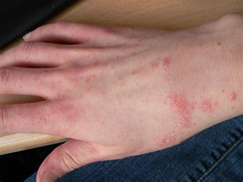 rug rash scabies schurft