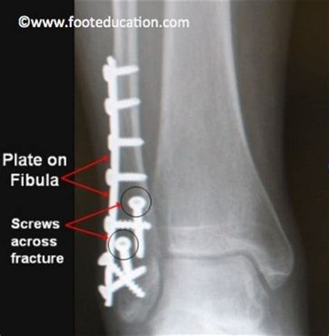 1000 images about broken fractured bones on