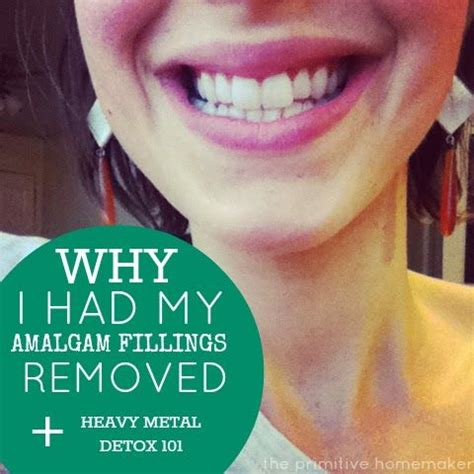 Mercury Amalgam Removal Detox by 17 Best Images About Amalgam Removal On Heavy