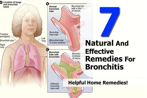 7 and effective remedies for bronchitis