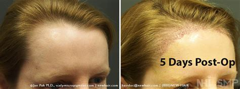 female receding female hairline lowering and rounding surgery
