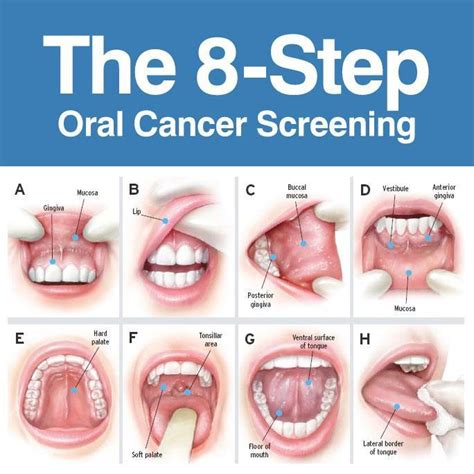 oral cancer screening light oral cancer screening download foto gambar wallpaper