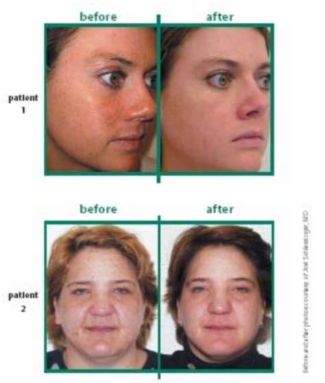 Afa Care By Purvie Care afa peel is the only peel that does not make you sun