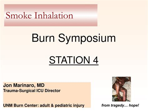 ppt smoke inhalation powerpoint presentation id 394256