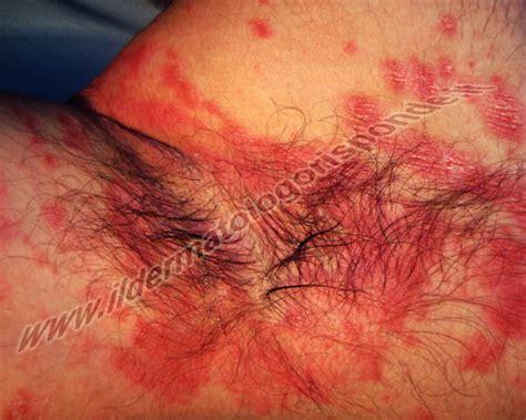 prurito interno vaginale intertrigine inguinale e ascellare cause scatenanti e