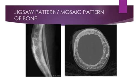 mosaic pattern paget disease signs in paget s disease