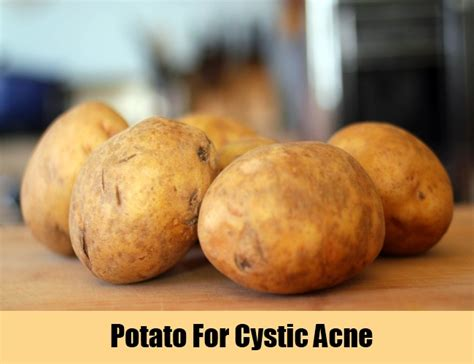 cystic acne home remedies treatments cures
