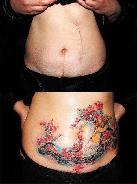 tatuagens em cicatriz 10 fotos que deram certo