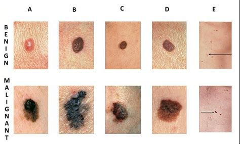 Differences Between Malignant Melanoma And A Normal Mole | the simple concept of cancer with its complex implications