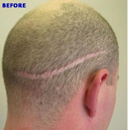 hair style for men haur transplant scar fore head hair transplant this wordpress com site is the