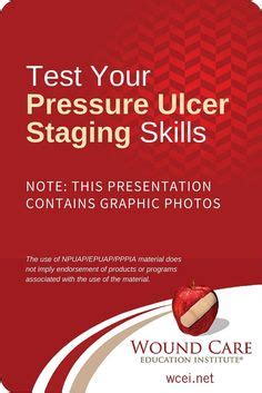 wound healing secrets revolutionary methods to heal your wound save your leg and reclaim your books 1000 ideas about pressure ulcer on wound care