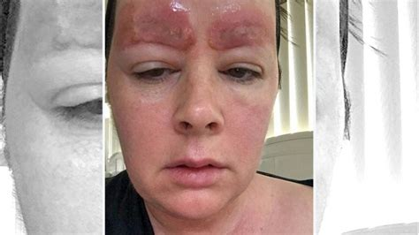 girl tattoo eyebrow woman sued by salon after posting photos of painful