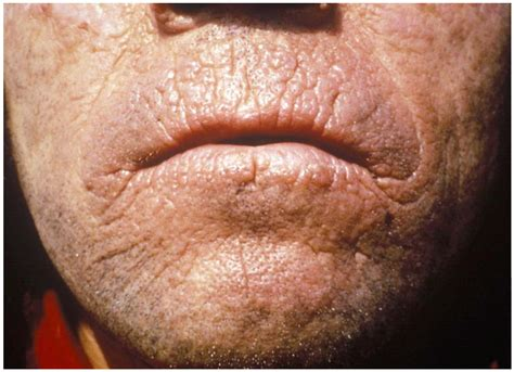 type of disease skin conditions human skin problems gallery