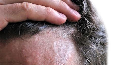 dermatite seborroica testa dermatite seborroica capelli centro tricologico tricomedit