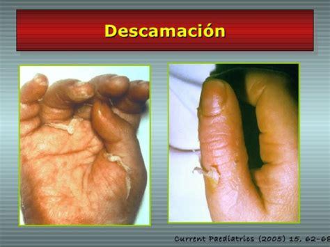 imagenes enfermedad kawasaki niños enfermedad de kawasaki