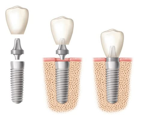 for dental implants in mexico how safe are dental implants in mexico