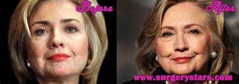 did hillary clinton get a facelift hillary clinton facelift before after pictures