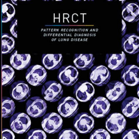 pattern recognition help in diagnosing illness hrct pattern recognition and differential diagnosis of