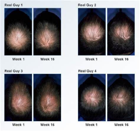 Paket Rogaine Natrol Biotin 10000mcg biotin hair growth biotin hair growth before and after