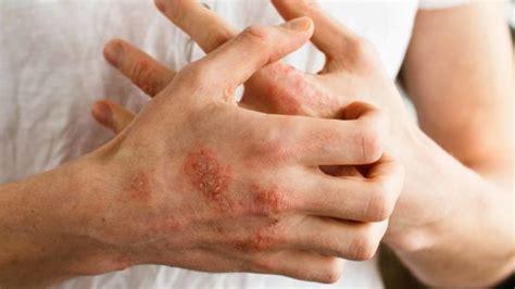 home remedies  eczema natural face legs hands