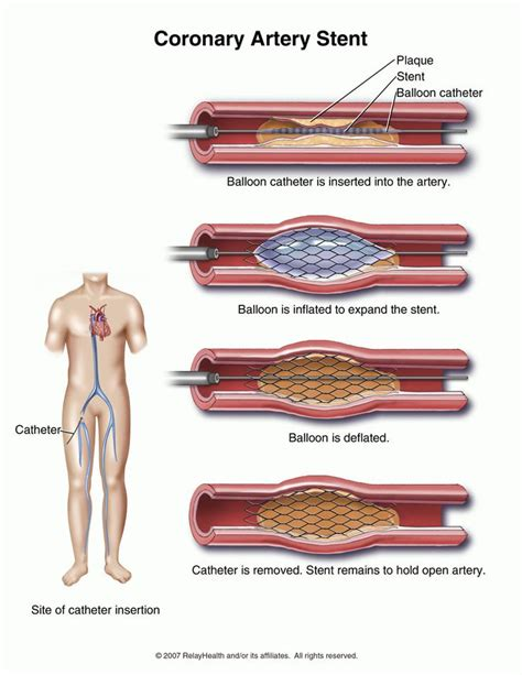 coronary angioplasty with or without stent implantation 17 best images about heart stents on pinterest