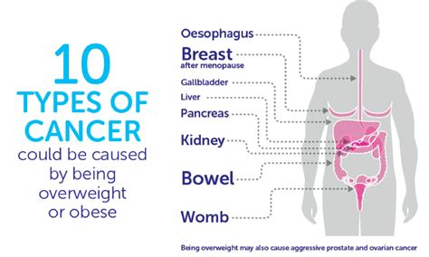 10 Causes Of Obesity by Obesity Increases Pancreatic Cancer Risk 183 Pancreatic