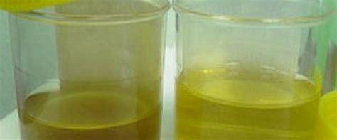 protein in urine urine protein