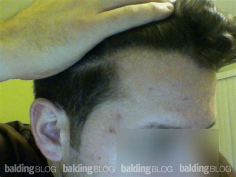 53 year old typical hairline balding blog photos archives page 4 of 22 wrassman m