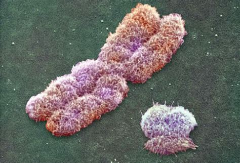 Men Who Smoke Be Missing Y Chromosomes Y Chromosome