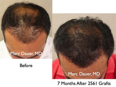 hair transplant america hair transplant america hair transplant america hair