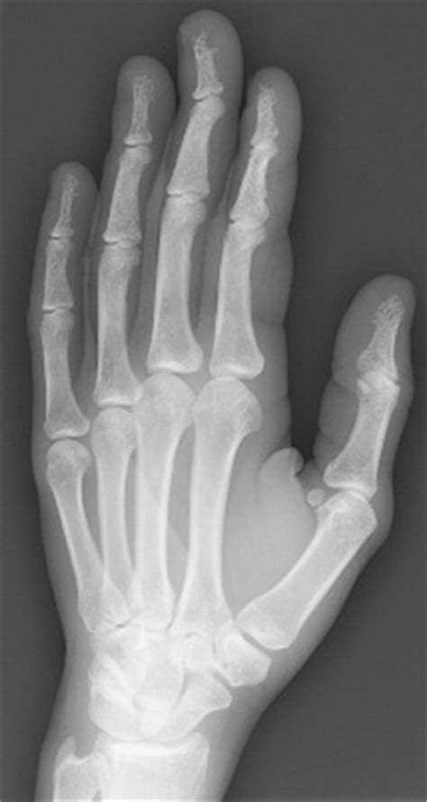 pattern dystrophy aao nail dystrophy and bony involvement in chronic sarcoidosis