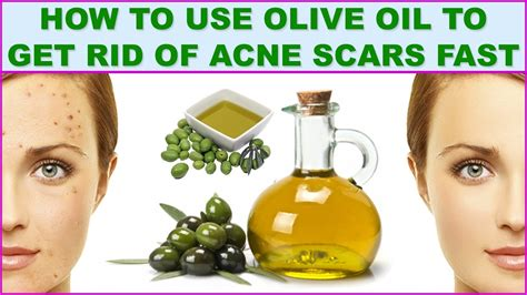 how to use olive to get rid of acne scars naturally