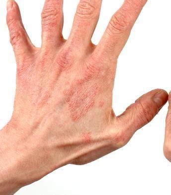 macchie da intossicazione alimentare come curare il prurito della pelle 4 passi