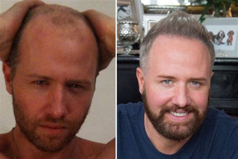 sting hair transplant having a hair transplant has been scientifically proved