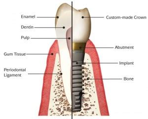 dental bridges vs implants: comparison of costs & benefits