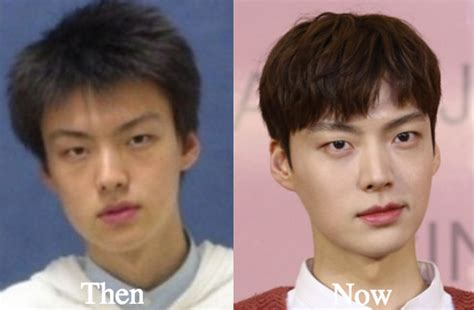 lee seung gi predebut ahn jae hyun plastic surgery before and after photos