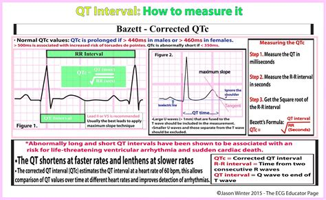calculator qtc ecg educator blog how to calculate the qtc bazett s